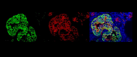 lung images - credit University of Edinburgh